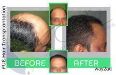 Hair transplant in Bangalore | Hair loss treatment
