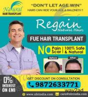 NHT Hair Transplant Clinic in Kochi, Kerala – Best Results at Low Cost