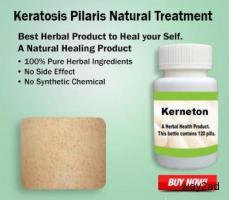 Natural Treatment for Keratosis Pilaris