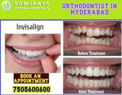 Invisalign Treatment in Hyderabad | Orthodontist in Hyderabad | Sowjanya Dental