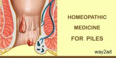 Best Homeopathic Treatment For Piles - Welling Homeopathy