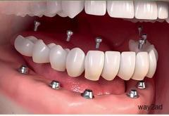 dental doctor in vizag |Manohar dental care